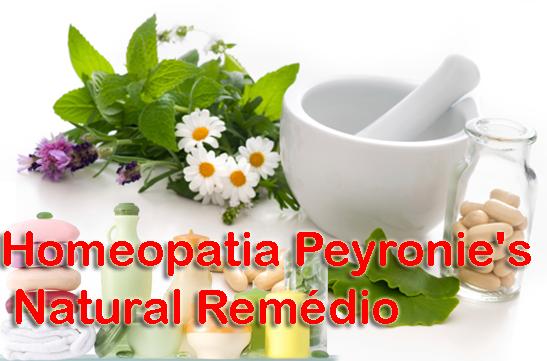 Homeopatia Peyronie's Natural Remédio