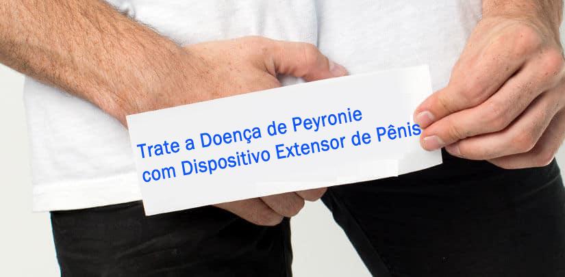 Trate a doença de Peyronie com dispositivo extensor de pênis