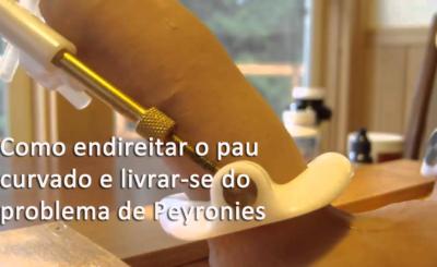 Como endireitar o pau curvado e livrar-se do problema de Peyronies