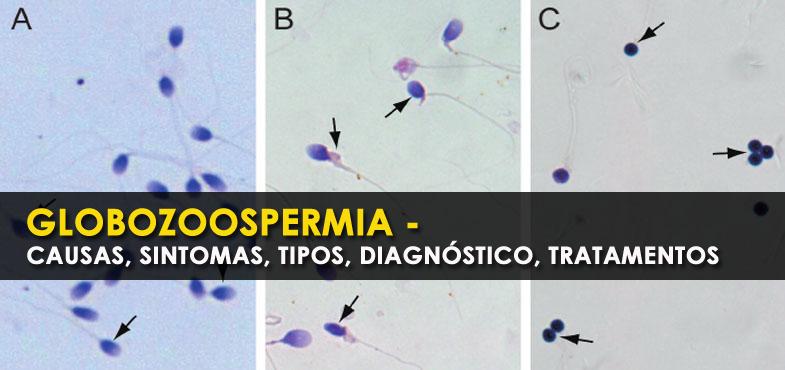 Globozoospermia - causas, sintomas, tipos, diagnóstico, tratamentos