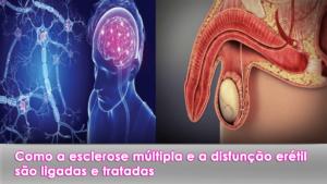 Como a esclerose múltipla e a disfunção erétil são ligadas e tratadas