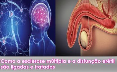 esclerose múltipla e a disfunção erétil