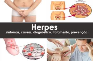 Herpes: sintomas, causas, diagnóstico, tratamento, prevenção
