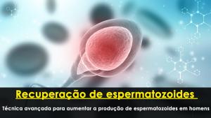 Recuperação de espermatozoides - técnica avançada para aumentar a produção de espermatozoides em homens